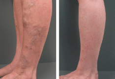 Abnormal-veins